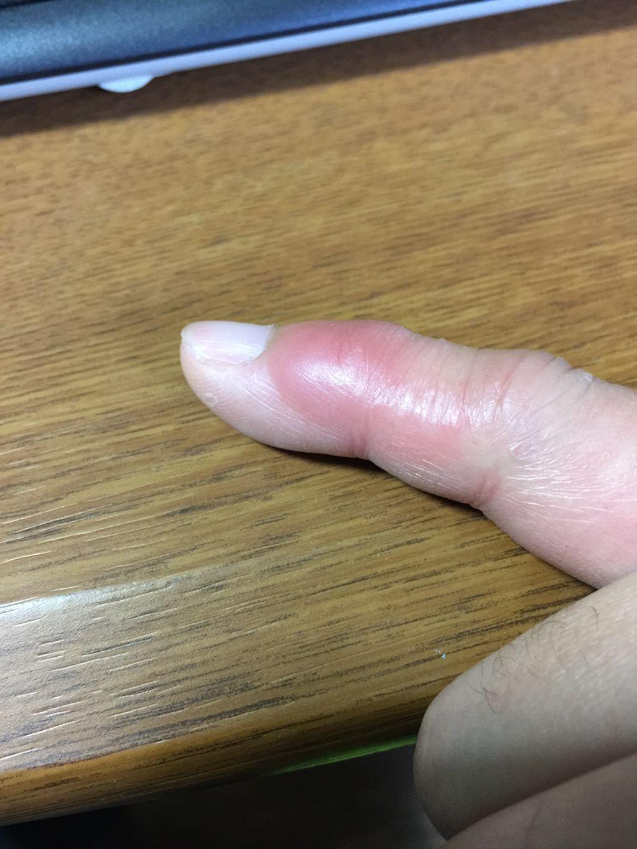 蜂に刺された指